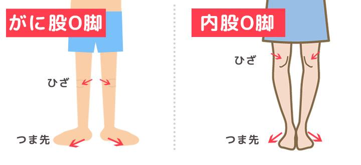 がに股O脚と内股O脚のイメージイラスト